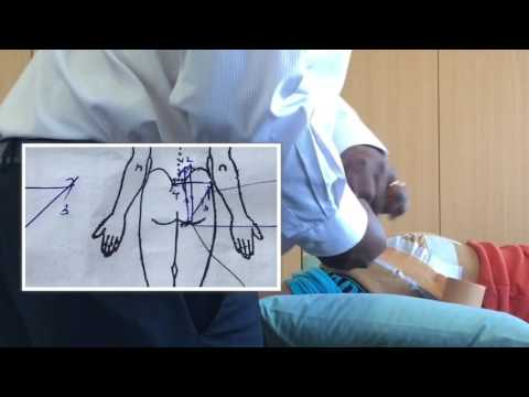 Application of biomechanical taping programme to the gluteal/pelvic region for patients with sciatic nerve involvement / reduced gluteal muscle control