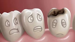 2 रुपयामध्ये घरातच काढू शकता दातांची कीड पहा कसे