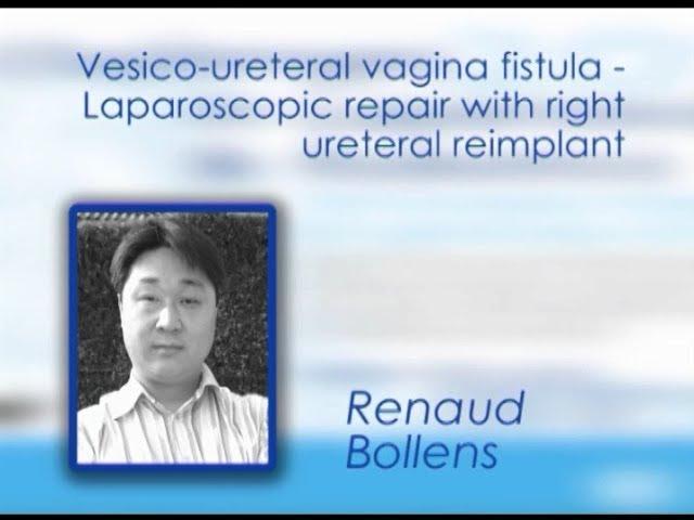 CILR 2012 - Renaud Bollens - Vesicoureteral vagina fistula laparoscopic repair