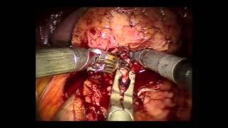 Néphrectomie partielle robot assistée échoguidée pour tumeur endophytique- Pr Karim BENSALAH