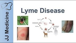 Lyme Disease | Pathophysiology, Signs, and Treatment