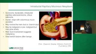 Pancreatic Cysts: Diagnosis & Management