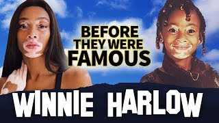 WINNIE HARLOW | Before They Were Famous  | Biography