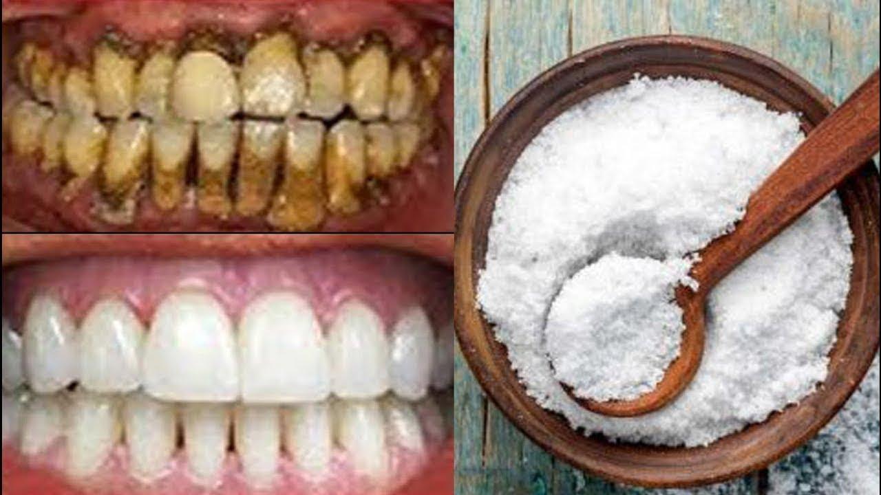 Doğal Çözüm 2 Dakikada Evde Anında Bembeyaz Kalıcı Dişler!   Diş beyazlatma doğal yöntem!