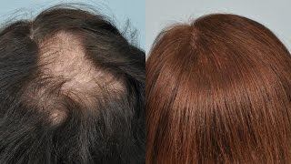 How To Stop Hair Fall / Thinning At Home Hair Growth   SuperPrincessjo