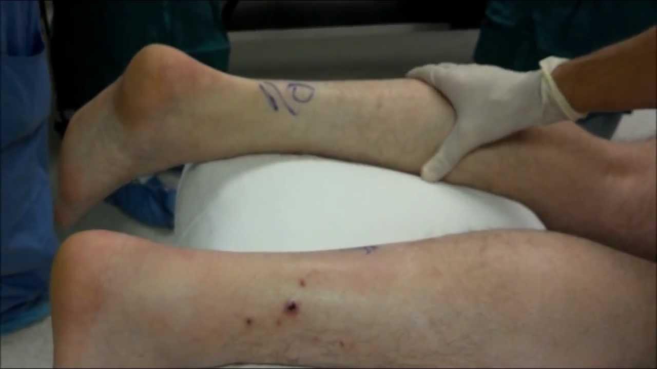 achilles tendon rupture squeeze test