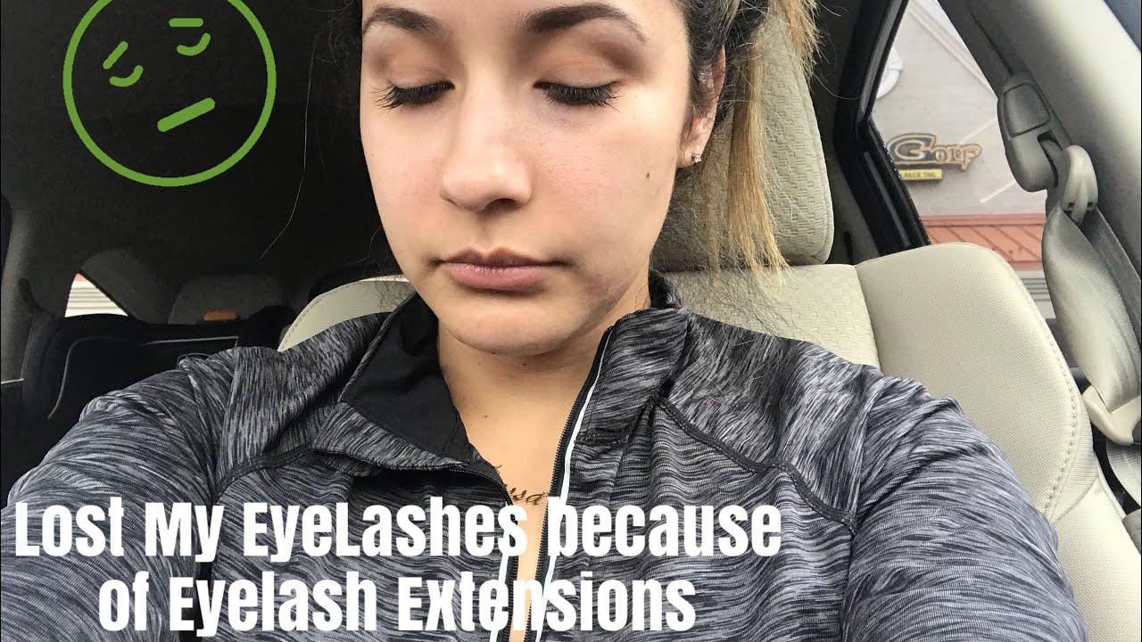 I Lost My Eyelashes Because Of Eyelash Extensions Youtube