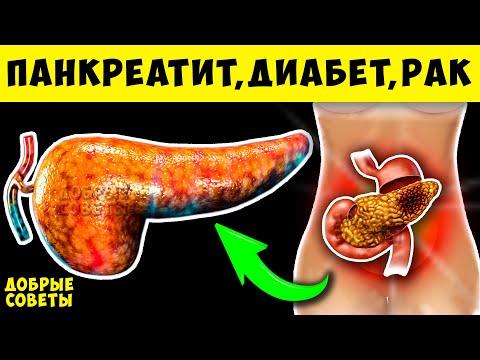 Симптомы Болезни Поджелудочной Железы, что Запрещено при Панкреатите