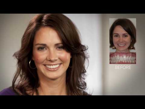 dr-rebecca-falsafi-orthodontics---damon-braces-in-clarence,-east-amherst,