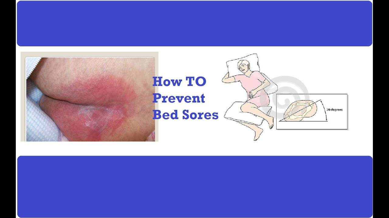 How To Prevent Bed Sores Pressure Ulcer Prevention How To Prevent Bed Sores For A Sick Patient Youtube