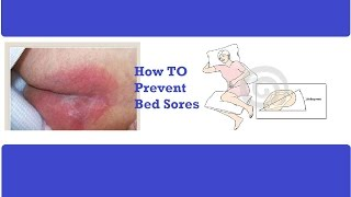 How to Prevent Bed Sores -Pressure Ulcer Prevention - How to Prevent Bed Sores for a Sick Patient