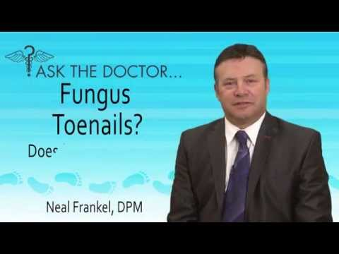 Does Fungus Make My Shoes Stink? Chicago, Lincolnwood, Oak Brook, IL – Podiatrist Neal Frankel