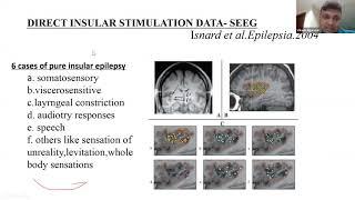 Epilepsy MRI vs Normal - Penanganan Pasien Epilepsi & Monitoring Pasien Epilepsi Status Epilepticus.