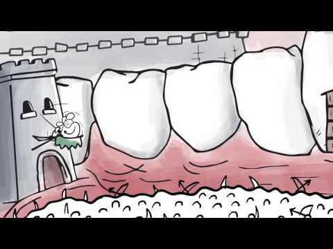 See How Fluoride Plus Xylitol Improves Dental Health | Xlear