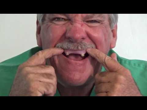 DO IT YOURSELF DENTURE TEETH PLACEMENT