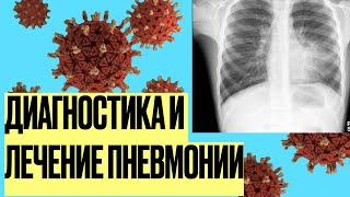 видео Лечение воспаления легких - симптомы, диагностика и методы