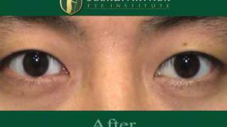 Cosmetic surgery for red eyes