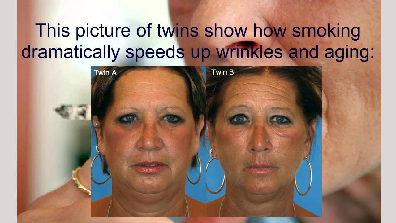 How Smoking Causes Wrinkles - YouTube