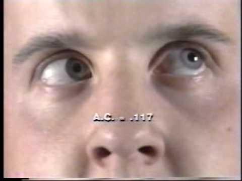 police field sobriety nystagmus tests - youtube, Skeleton