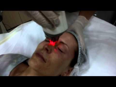 лазерное фракционное омоложение лица реабилитация