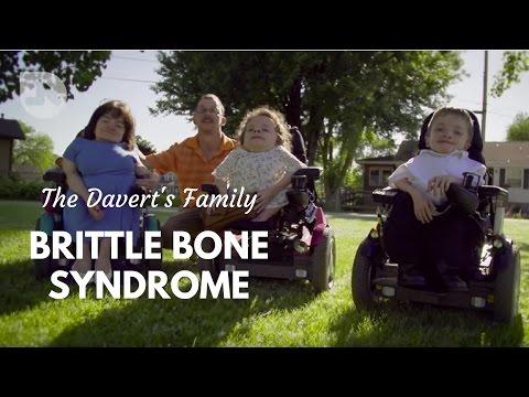 The Daverts: Brittle Bones & Cerebral Palsy