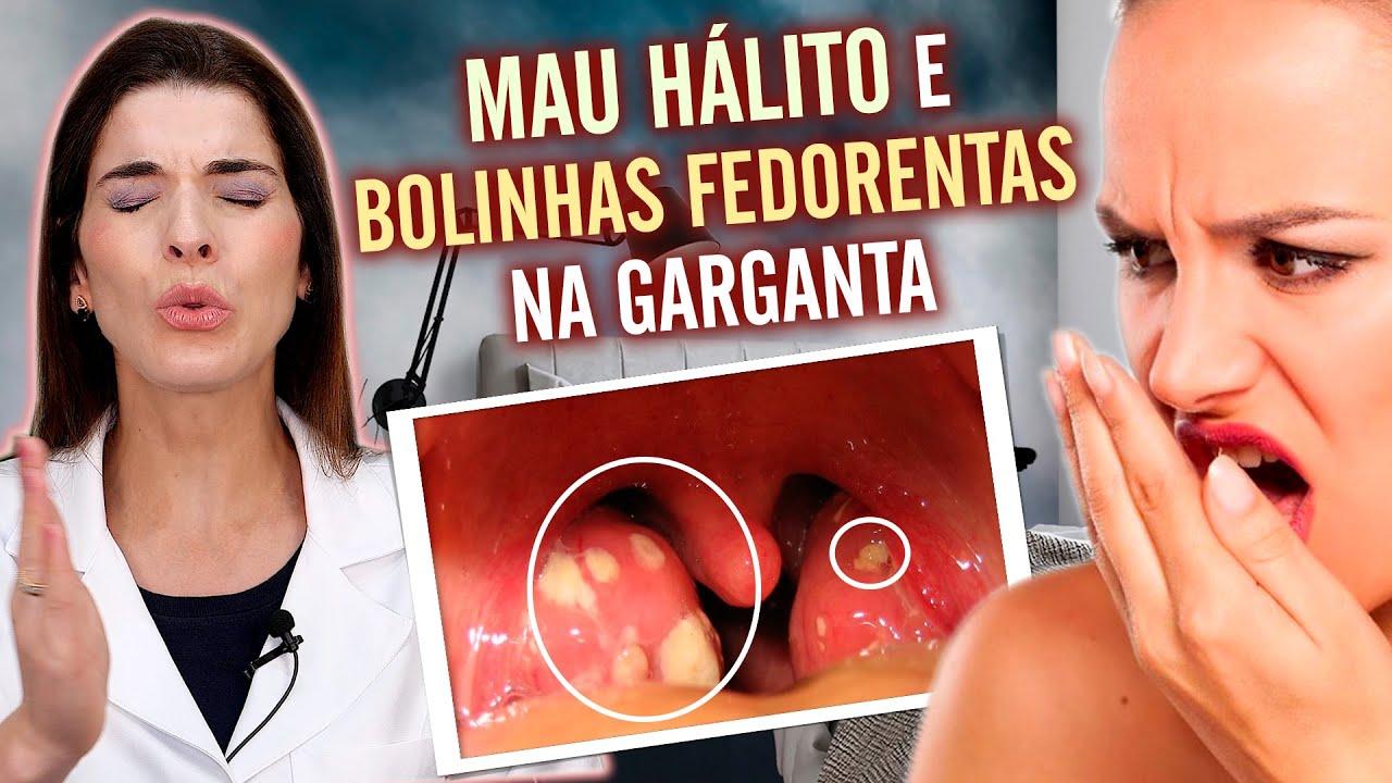 ACABE com as Bolinhas Fedorentas da Garganta e o MAU HÁLITO
