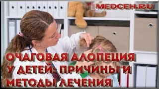 видео Гнездная алопеция у женщин, мужчин, детей: причины и лечение, фото