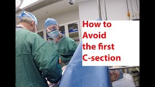 How to Avoid C-section and Have a Vaginal Delivery