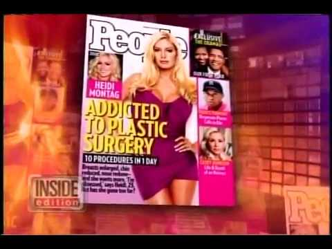 Heidi Montag on her 10 Plastic Surgery Procedures in People Mag
