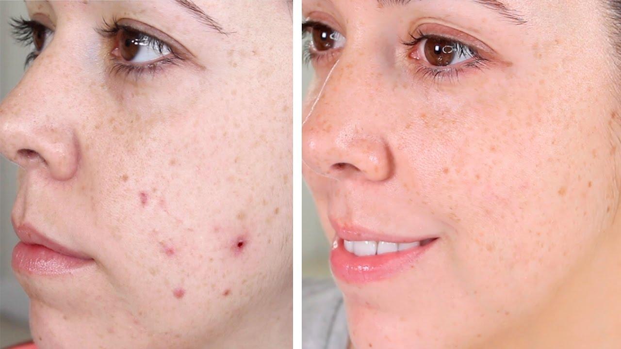 Resultado de imagen para acné