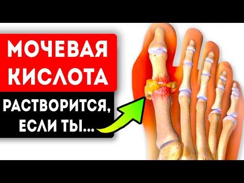 Мочевая кислота перестала грызть суставы, после того как... Подагра и артрит