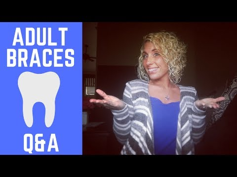 """ADULT BRACES Q&A"" - Any tricks to keeping your teeth white?"