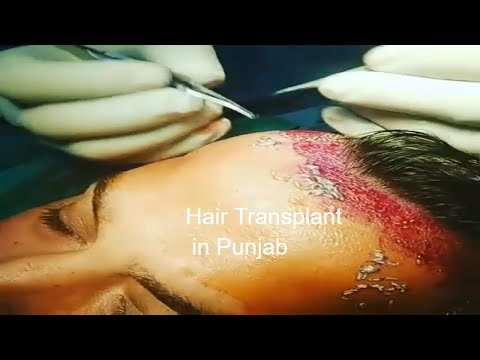 Hair Transplant services started at Bombay Skin and Laser Centre Bathinda Road Muktsar Punjab India