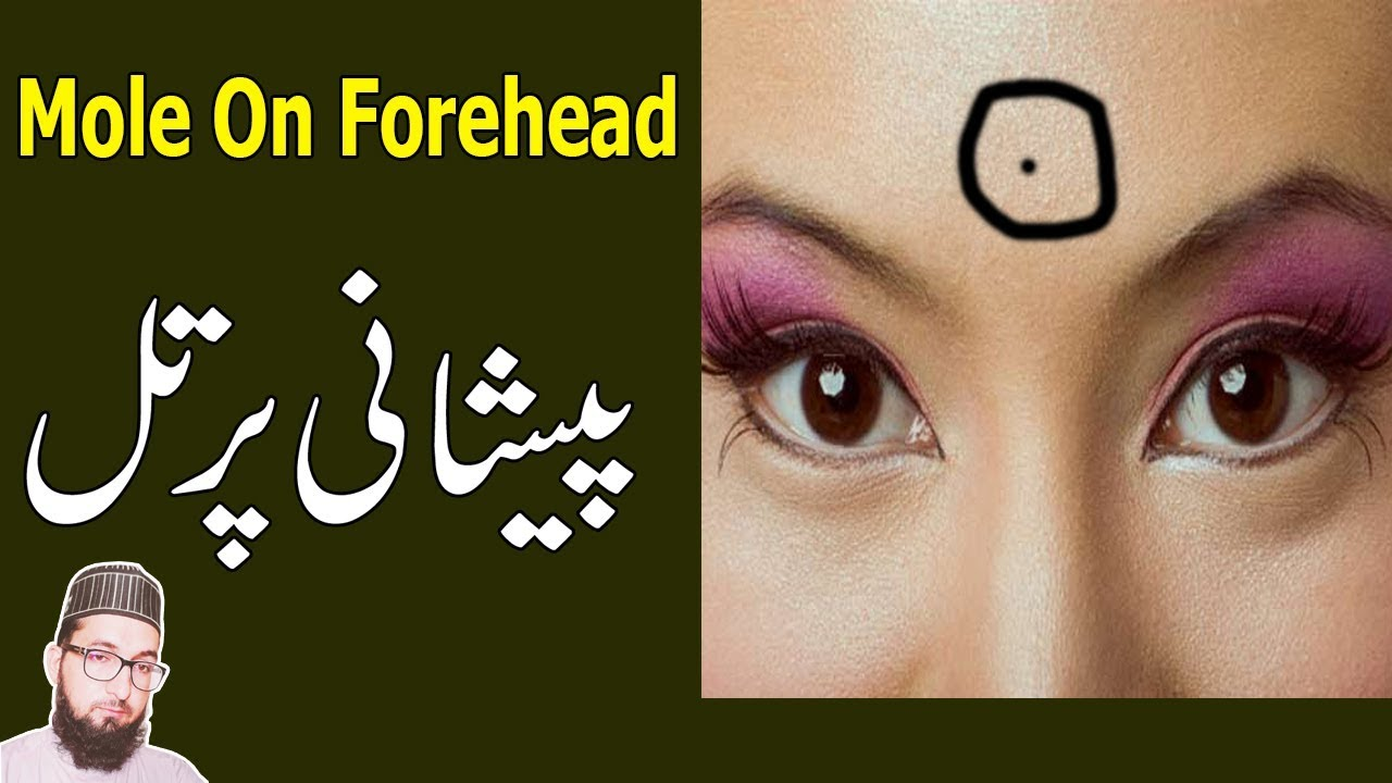 Mole On Forehead Meaning In Hindi Til On Peshani Mole On Face Youtube