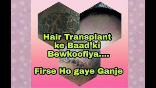 Top 3 MISTAKES to Avoid After Hair Transplant Surgery - Infection, Blood Clotting & Shave