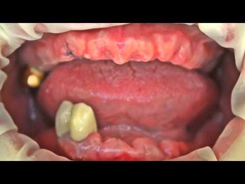 Протезирование съемными протезами верхняя и нижняя челюсть