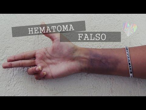 Hematoma/Moreton falso