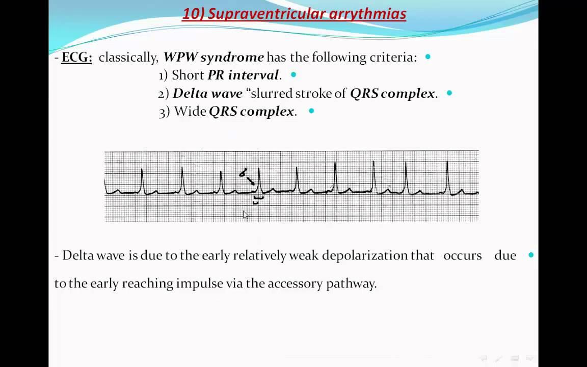 Principles Of Ecg Electrocardiography Part 9 Youtube