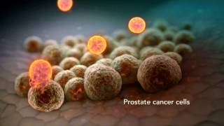 Advanced Prostate Cancer: Living Longer, Living Better
