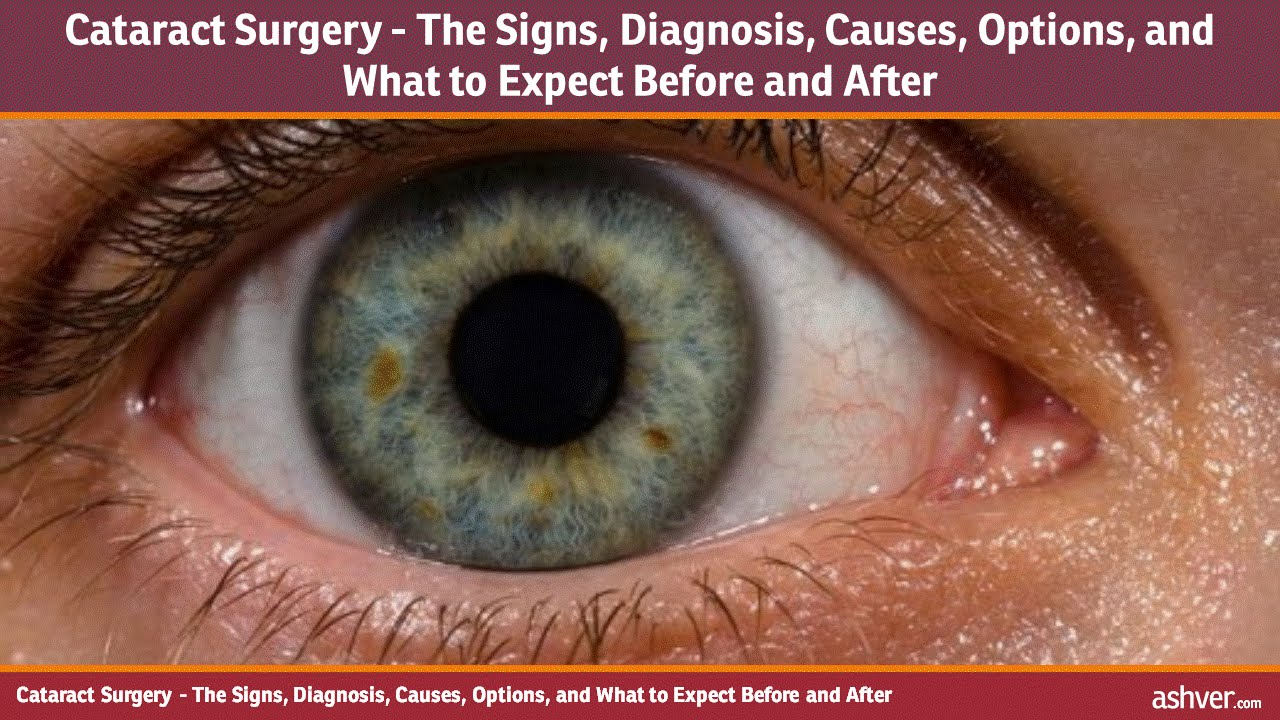 What are the main causes of cataracts