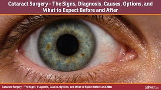 Cataract Surgery - The Signs, Diagnosis, Causes, Options, and What to Expect Before and After