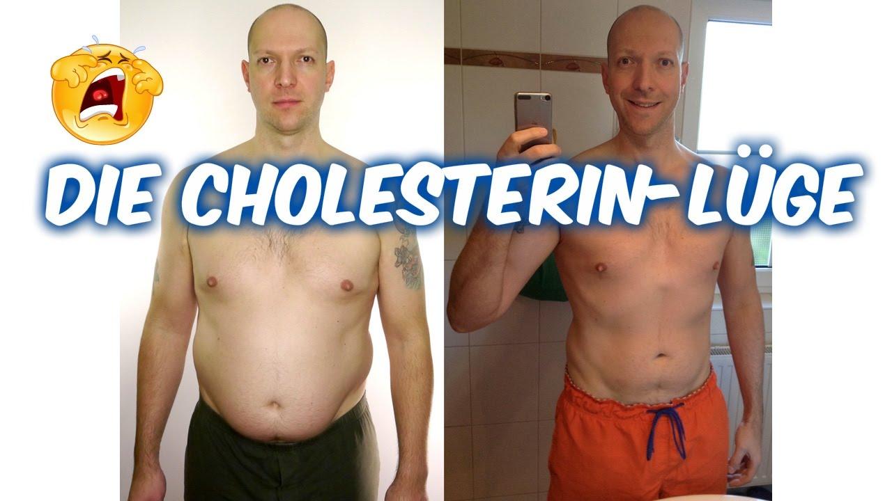 Cholesterin Lüge
