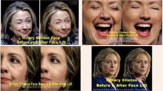 Hillary Clinton Face Before and After Face Lift #480 np