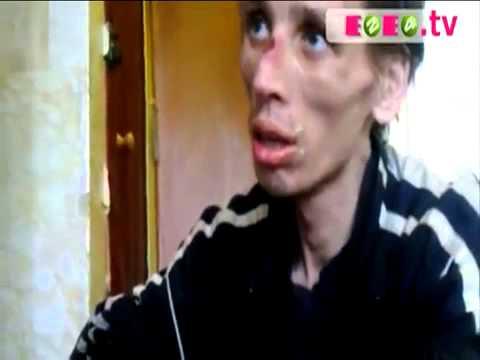 Наркотик кракодил Дезоморфин