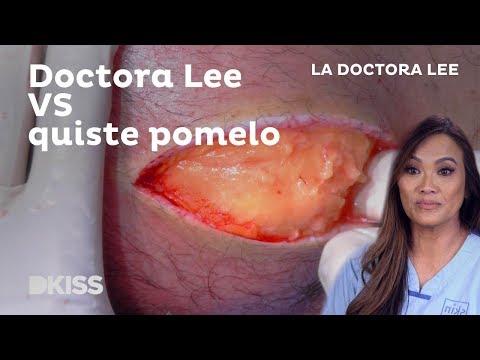 La doctora Lee extrae un quiste del tamaño de un pomelo #DoctoraLee #PimplePopper