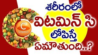 Vitamin C Deficiency Telugu I విటమిన్ సి లోపం I Vitamin C deficiency Symptoms I Good Health and More