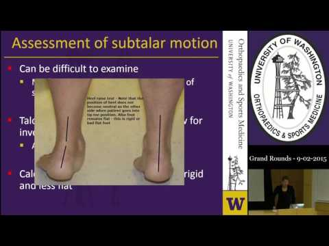 Orthopaedic & Sports Medicine Grand Rounds - 9/2/2015 - Tarsal Coalitions: Cradle to the Grave