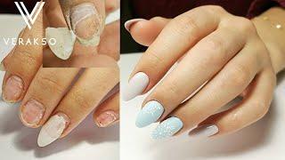 Трэш ногти Новогодние ногти Преображение Коррекция нарощенных ногтей