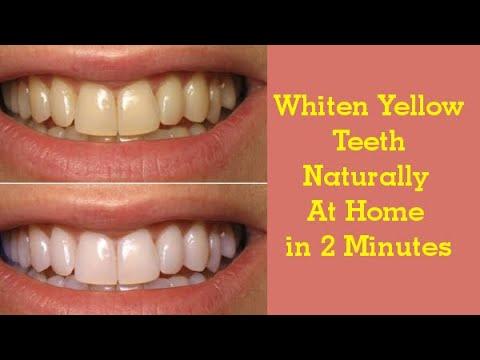 How To Whiten Teeth Naturally White Teeth Home Remedy Youtube