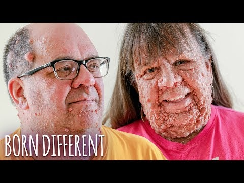 Husband & Wife With Thousands Of Tumours | BORN DIFFERENT